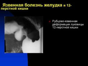 Армия. рубцовая деформация луковицы 12 перстной кишки.