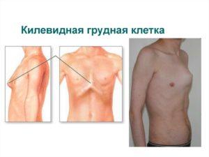 У меня деформация грудной клетки(Килевидная) берут ли с этим в армию?