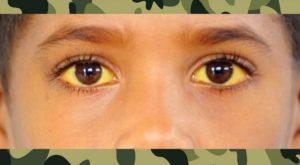 Не ужели в армии берут с таким диагнозом как синдром жильбера