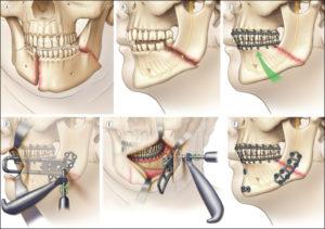Двойной перелом нижней челюсти (какое наказание)?